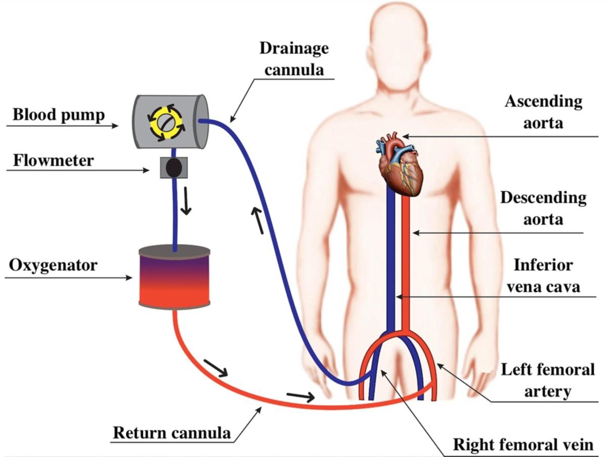 oxygénation par membrane extracorporelle
