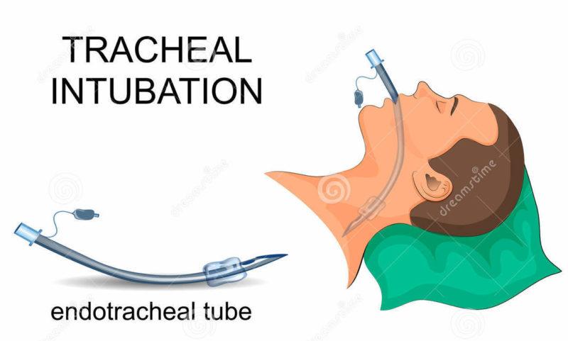 Intubation trachéale pour permettre la ventilation mécanique