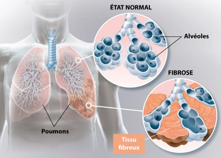 Le schéma d'une fibrose pulomaire
