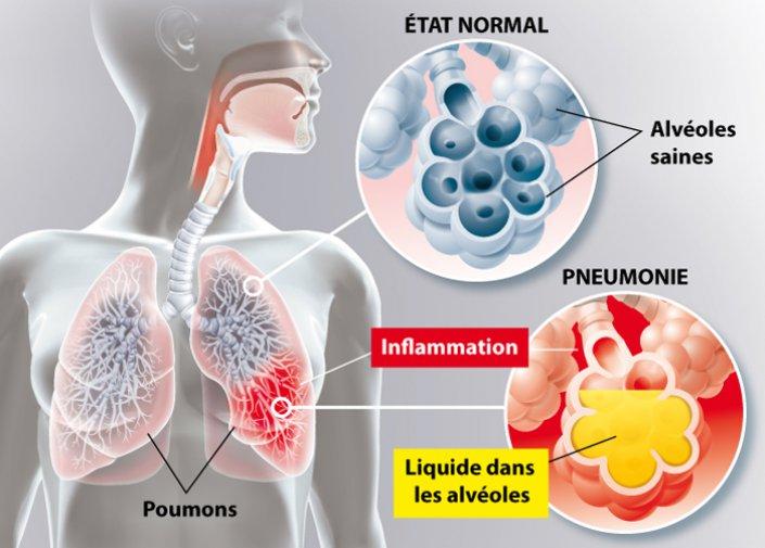 Un schéma de l'inflammaion du poumon avec de l'eau dans les alvéoles